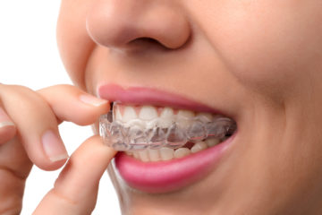 clear braces-invisalign | orthodontists